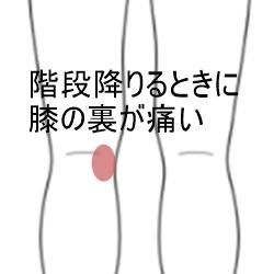 裏側 膝 痛み の